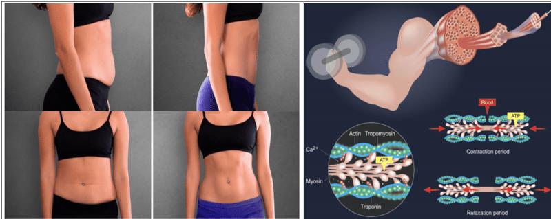 emsculpt-muskel-behandling